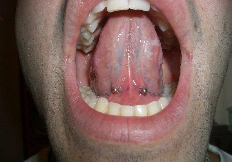 Tongue Web Piercing